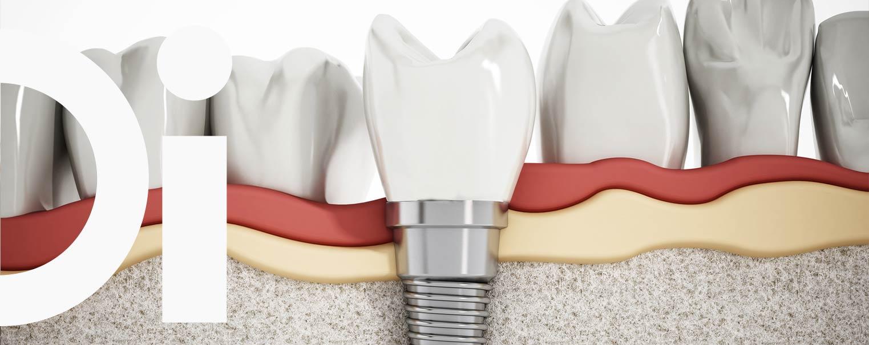 implantes-dentales-tratamiento-clinica-carrasquer